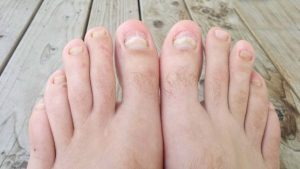 nail fungus remedy over the counter